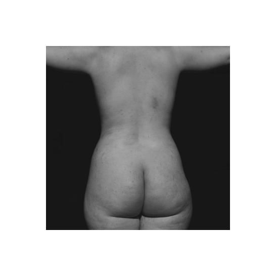 BICHE Photography_Bone Marrow 7